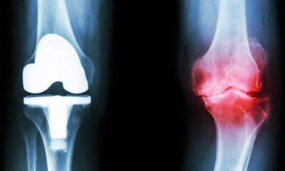 Yaralanmalarda kök hücre tedavisi