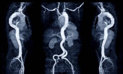 Beyinde patlamaya hazır bomba: Aort anevrizması nedir?