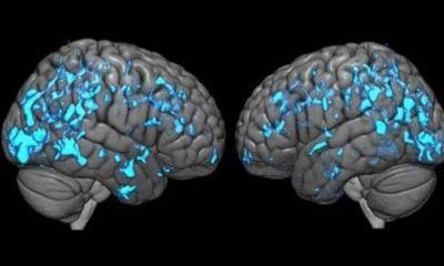Parkinson hastalığına erkeklerde daha çok rastlanıyor