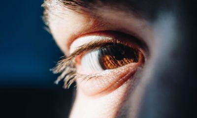 Sarı nokta hastalığının risk faktörleri nelerdir?