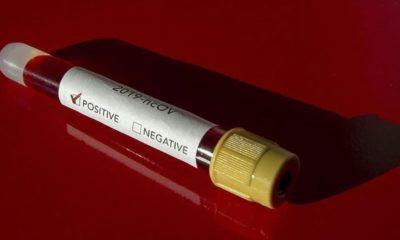 ABD'de NBA oyuncularının koronavirüs testine hızlı erişimi tepkilere neden oldu