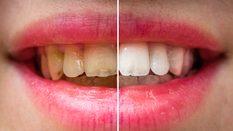 Diş etinde oluşan kanamalara dikkat edilmesi gerekiyor