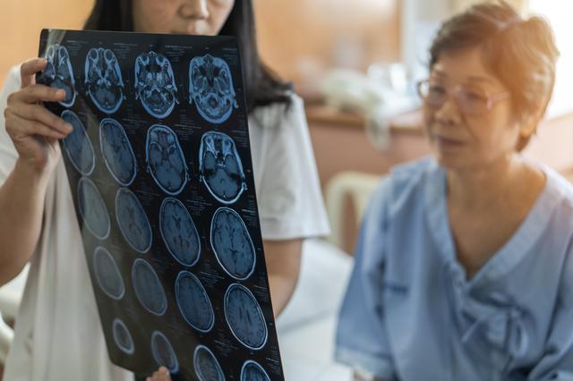 Lodoslu günlerde beyin kanaması tehlikesine dikkat
