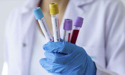 Corona virüs teşhisiyle hastaneye yatırıldı 4 damarına stent…