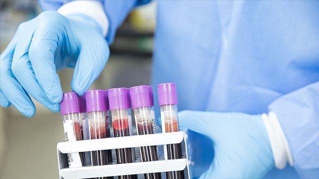 Corona virüse karşı aşı geliştirme çabaları sürüyor
