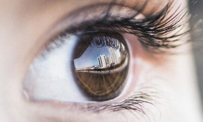 Göz alerjisi nedir? Belirtileri ve tedavi yöntemleri