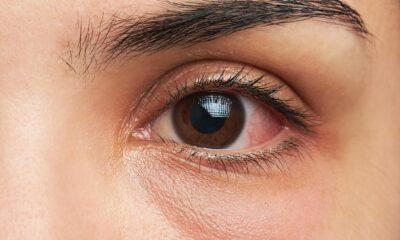Göz nezlesi neden olur? Göz nezlesi belirtileri