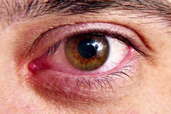 Göz için 7 tehlike sinyali ve tedavi yöntemleri
