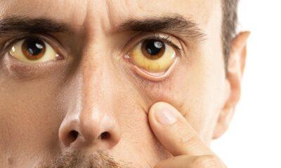 Hepatitten korunmanın 6 yolu