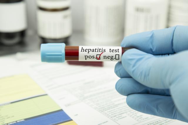 Viral hepatitler yılda 1 milyondan fazla can alıyor