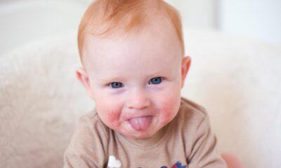 Çocuklarda en çok alerji yapan besinler: Alerjinin belirtileri…