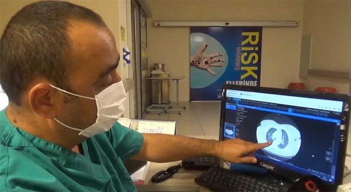 Corona virüse yakalanan hastanın akciğer görüntüsü hayrete düşürdü