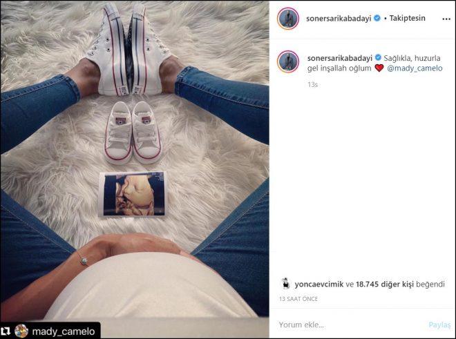 Soner Sarıkabadayı oğlunun ultrason fotoğrafını paylaştı