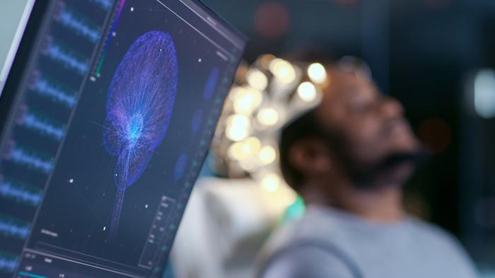 Geçici beyin krizi nedir? Nasıl tedavi edilir?
