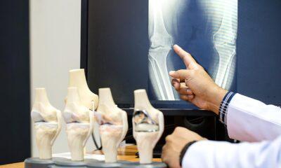 Osteoporoz (kemik erimesi) ilaç kullanmadan tedavi edilebilir…