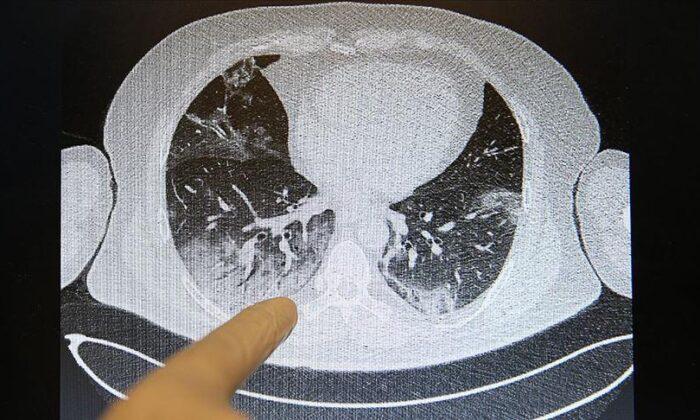 Corona virüsün akciğerlere verdiği zarar tomografi görüntülerine…