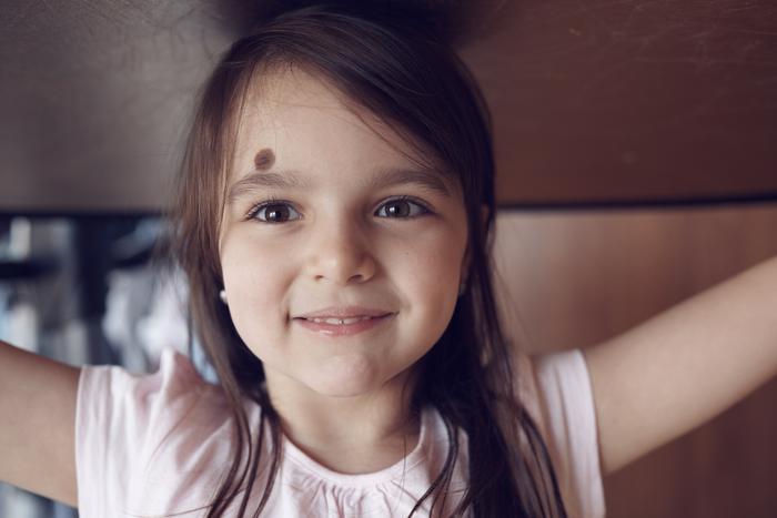 Lazer tedavileri çocuklara uygulanabilir mi?