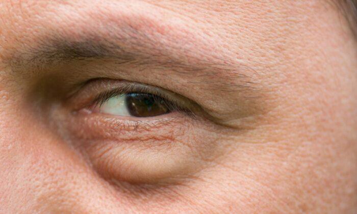 50 yaş üzerindeki kişilere önemli uyarı: Gözlerdeki bu belirtileri…