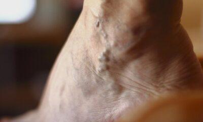 Varisler kansere neden olur mu?